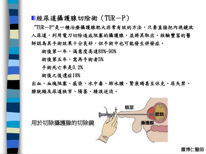 經尿道攝護腺切除術(