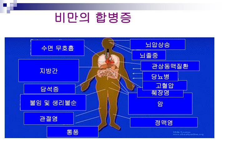비만의 합병증