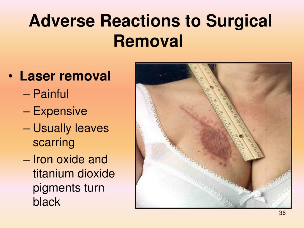 Adverse Reactions to Surgical Removal