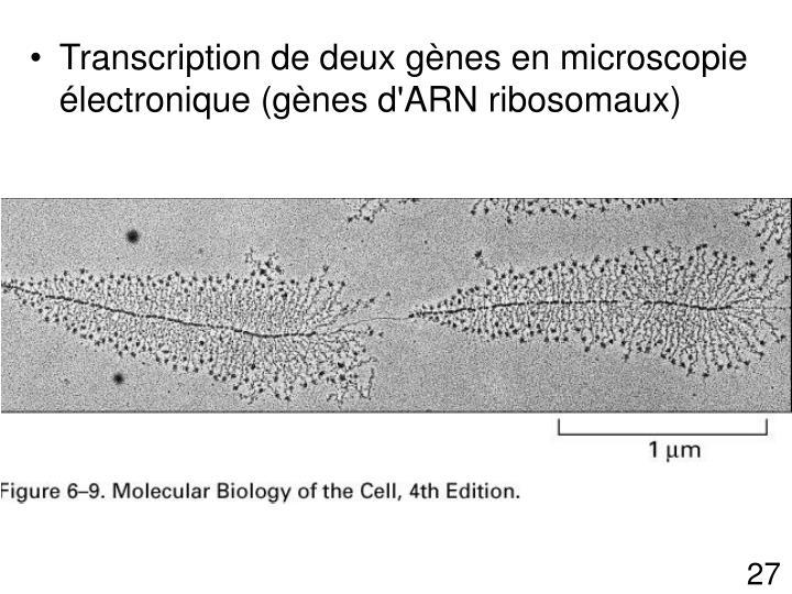 Transcription de deux gènes en microscopie électronique (gènes d'ARN ribosomaux)