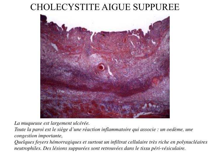 CHOLECYSTITE AIGUE SUPPUREE