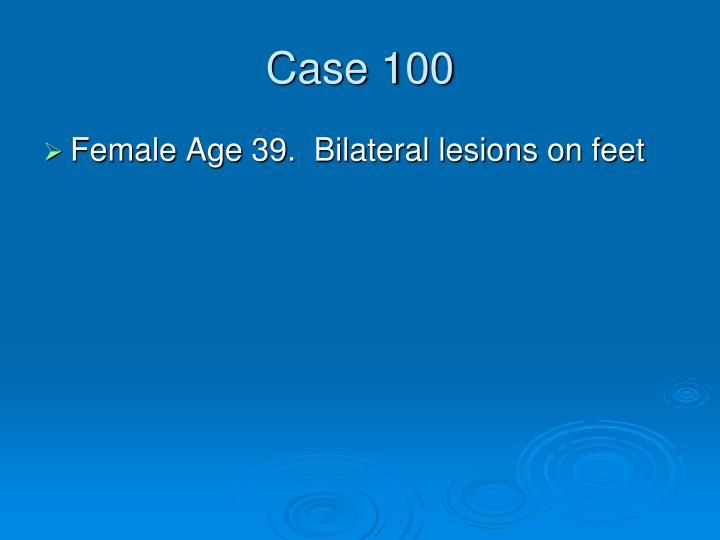 Case 100