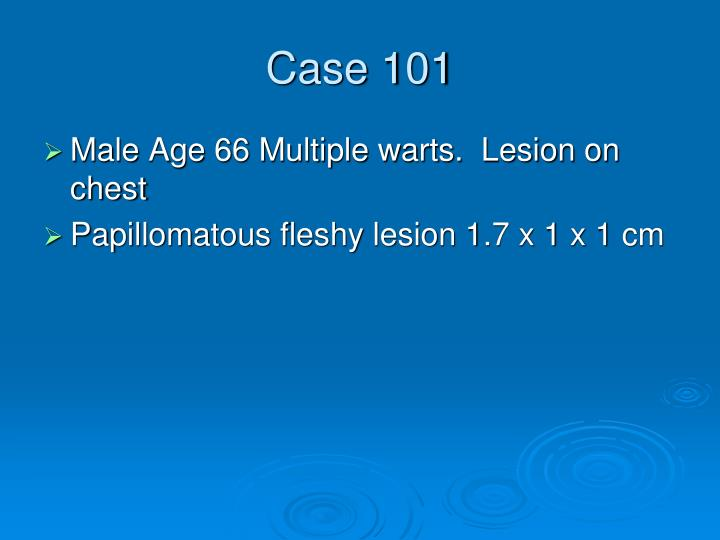 Case 101