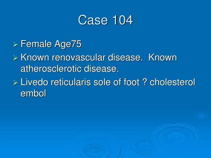 Case 104