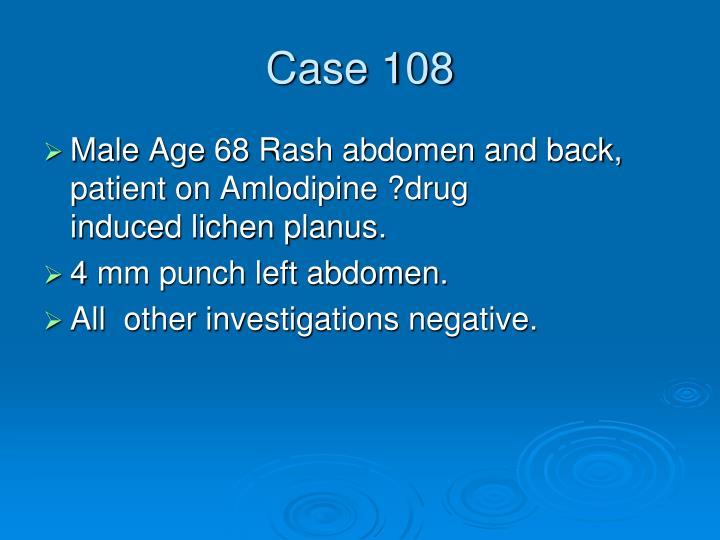 Case 108