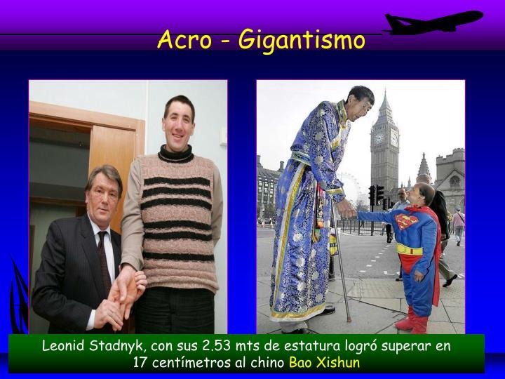 Acro - Gigantismo