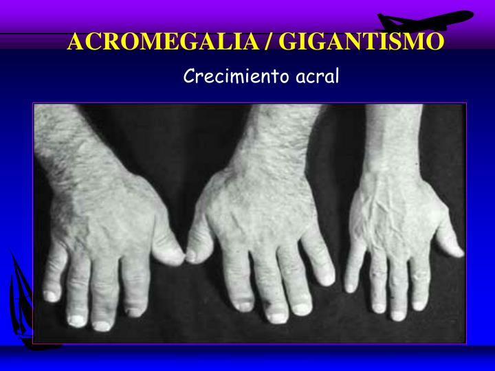 ACROMEGALIA / GIGANTISMO