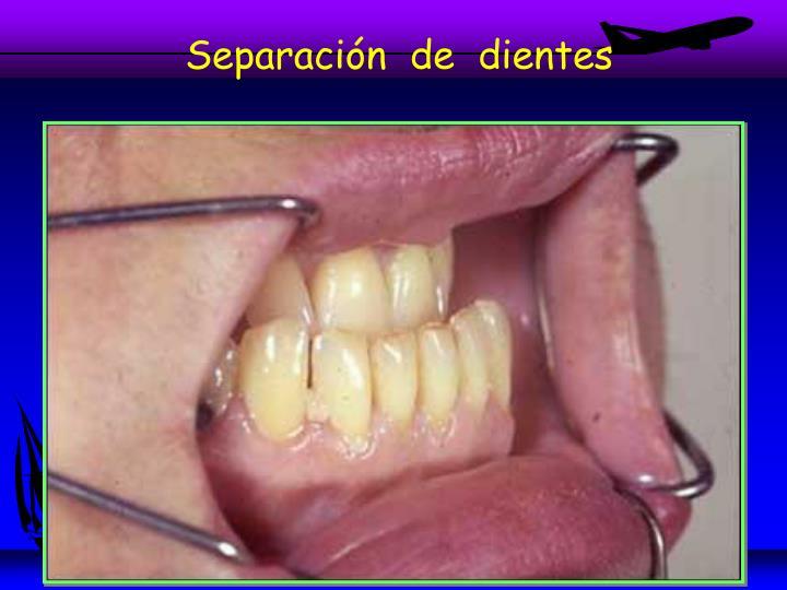 Separación  de  dientes