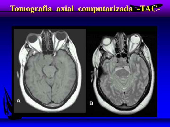 Tomografia  axial  computarizada  -TAC-