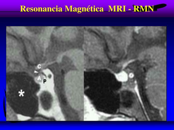 Resonancia Magnética  MRI - RMN