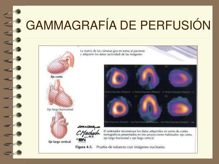 GAMMAGRAFÍA DE PERFUSIÓN