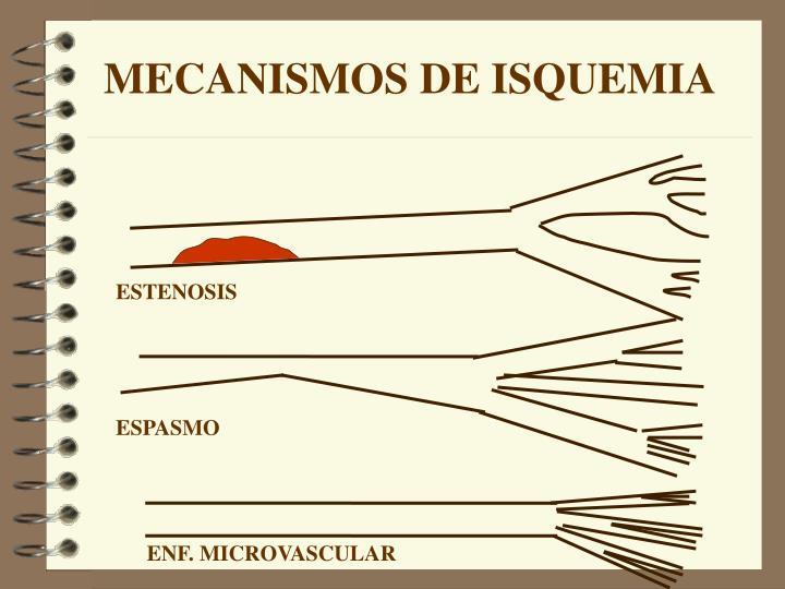 MECANISMOS DE ISQUEMIA