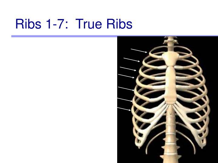 Ribs 1-7:  True Ribs