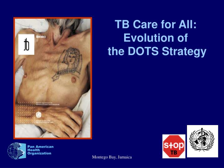 TB Care for All: