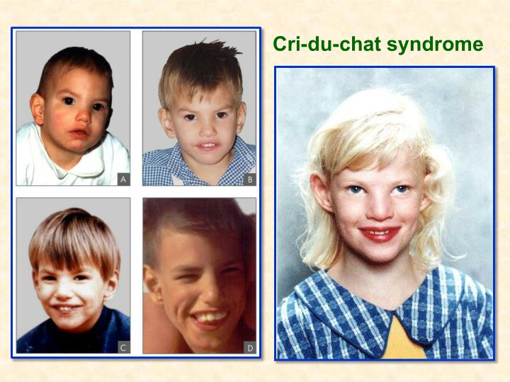 Cri-du-chat syndrome