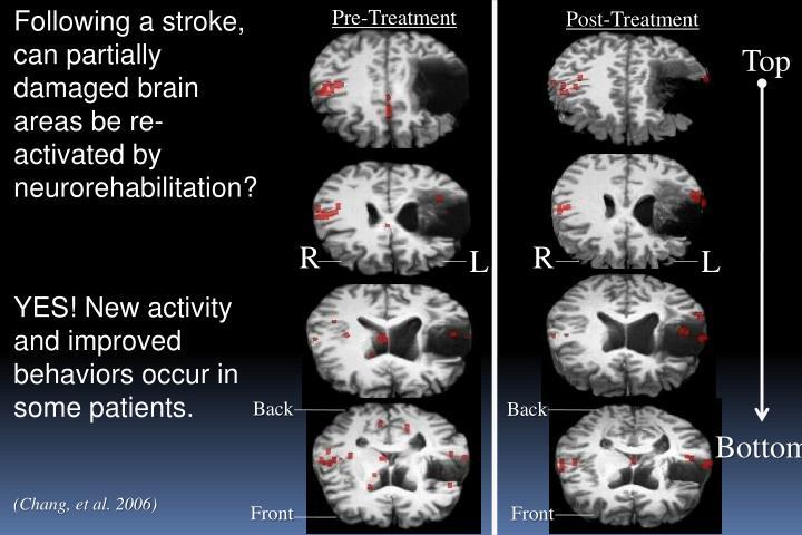 Following a stroke, can partially