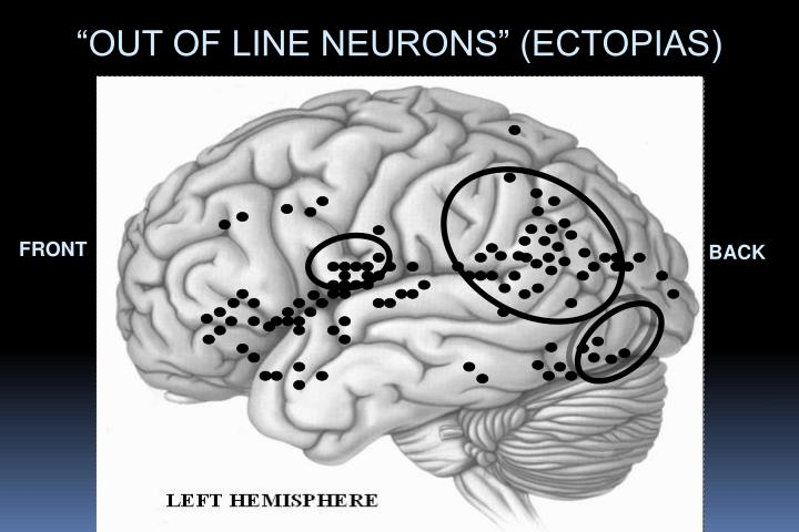 """""""OUT OF LINE NEURONS"""" (ECTOPIAS)"""