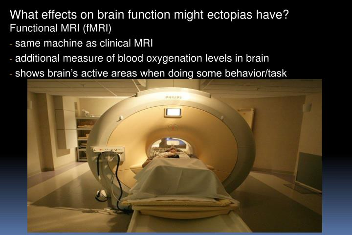 What effects on brain function might
