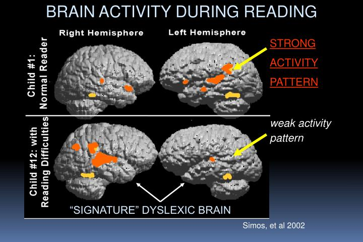 BRAIN ACTIVITY DURING READING