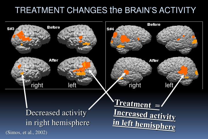 Treatment  = Increased activity in left hemisphere