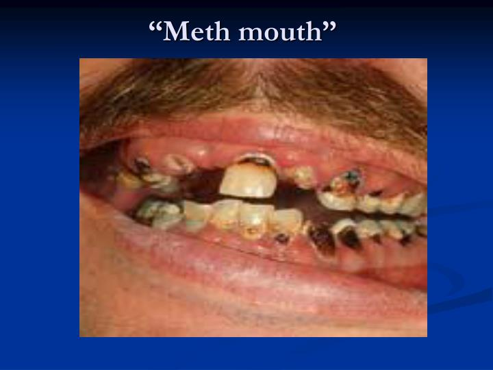 """""""Meth mouth"""""""
