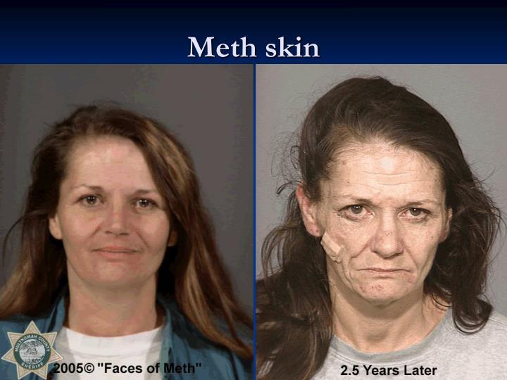 Meth skin