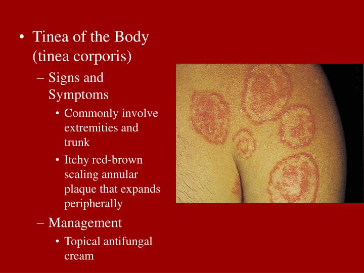 Tinea of the Body (tinea corporis)