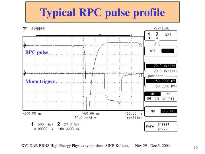 Typical RPC pulse profile