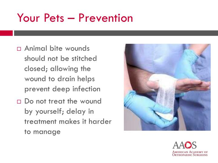 Animal bite wounds should not be stitched closed; allowing the wound to drain helps prevent deep infection