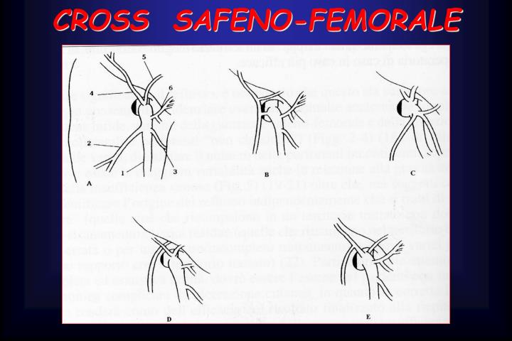 CROSS  SAFENO-FEMORALE