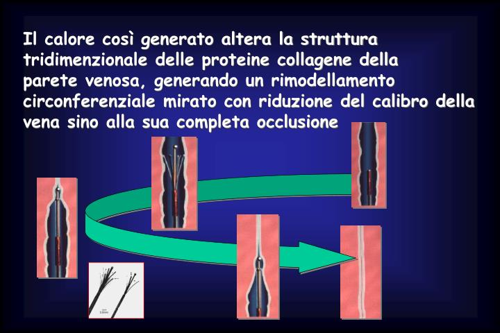 Il calore così generato altera la struttura tridimenzionale delle proteine collagene della