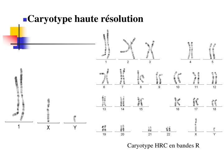 Caryotype HRC en bandes R