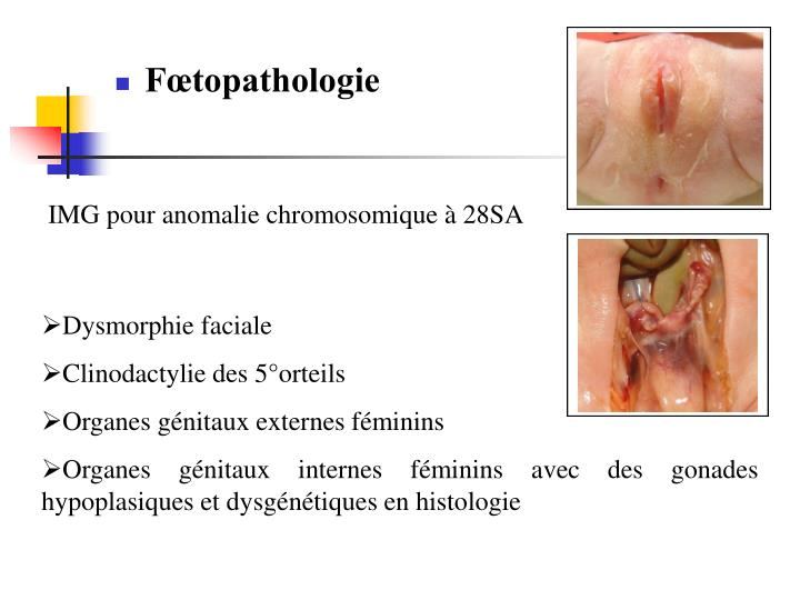 Fœtopathologie