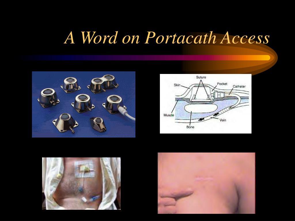 A Word on Portacath Access