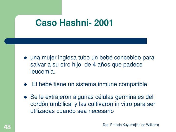 Caso Hashni- 2001