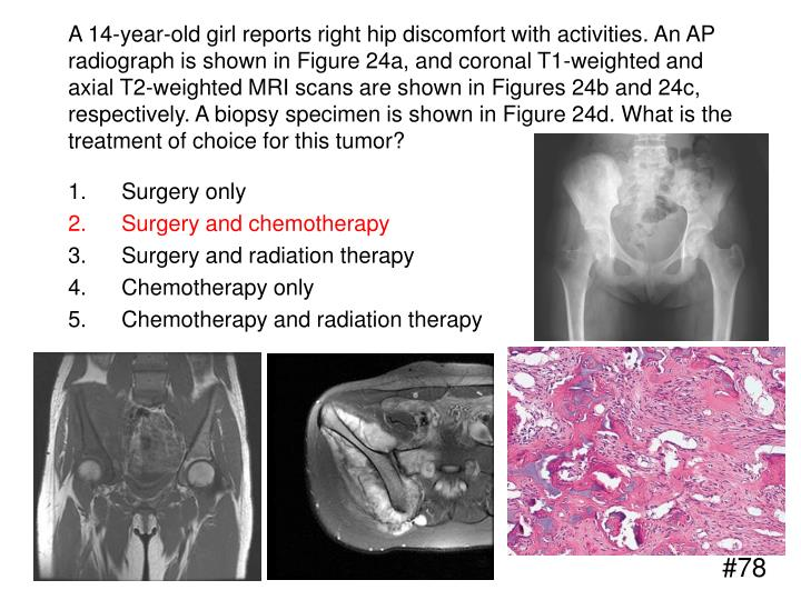 A 14-year-old girl reports right hip discomfort with activities. An AP radiograph is shown in Figure 24a, and coronal T1-weighted and axial T2-weighted MRI scans are shown in Figures 24b and 24c, respectively. A biopsy specimen is shown in Figure 24d. What is the treatment of choice for this tumor?