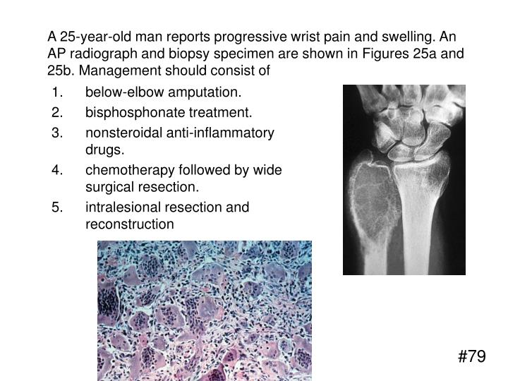 A 25-year-old man reports progressive wrist pain and swelling. An AP radiograph and biopsy specimen are shown in Figures 25a and 25b. Management should consist of