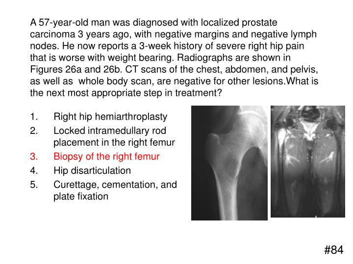 A 57-year-old man was diagnosed with localized prostate carcinoma 3 years ago, with negative margins and negative lymph nodes. He now reports a 3-week history of severe right hip pain that is worse with weight bearing. Radiographs are shown in Figures 26a and 26b. CT scans of the chest, abdomen, and pelvis, as well as  whole body scan, are negative for other lesions.What is the next most appropriate step in treatment?