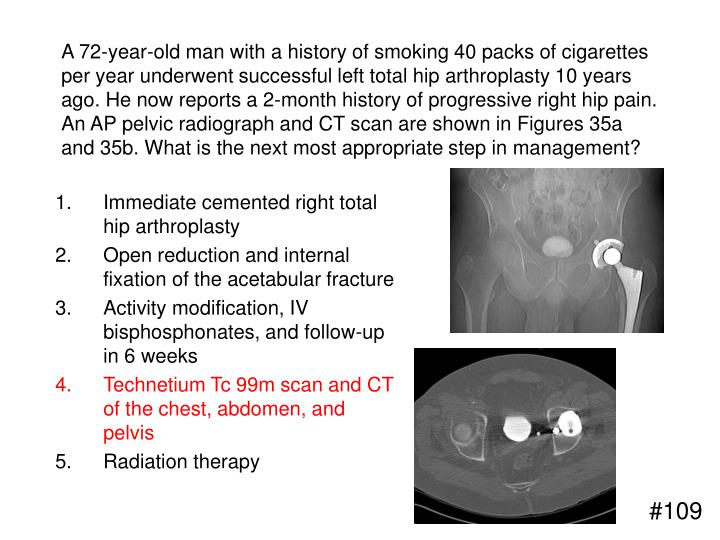 A 72-year-old man with a history of smoking 40 packs of cigarettes per year underwent successful left total hip arthroplasty 10 years ago. He now reports a 2-month history of progressive right hip pain. An AP pelvic radiograph and CT scan are shown in Figures 35a and 35b. What is the next most appropriate step in management?
