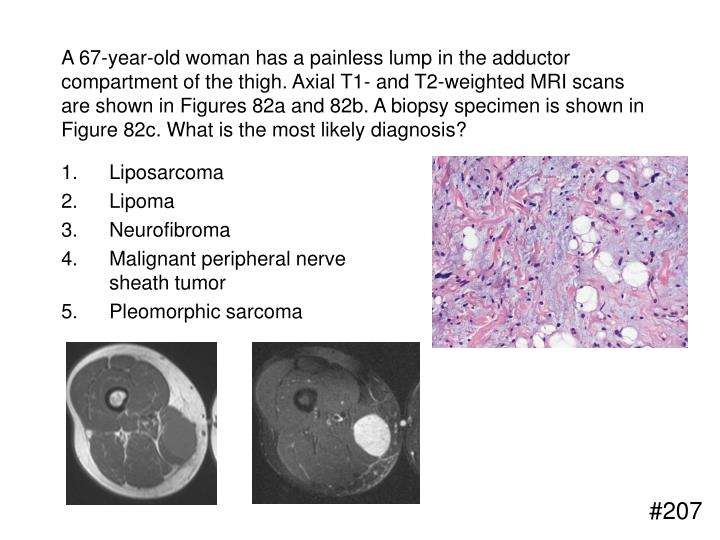 A 67-year-old woman has a painless lump in the adductor compartment of the thigh. Axial T1- and T2-weighted MRI scans are shown in Figures 82a and 82b. A biopsy specimen is shown in Figure 82c. What is the most likely diagnosis?
