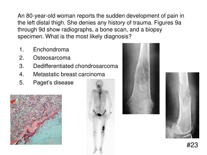 An 80-year-old woman reports the sudden development of pain in the left distal thigh. She denies any history of trauma. Figures 9a through 9d show radiographs, a bone scan, and a biopsy specimen. What is the most likely diagnosis?