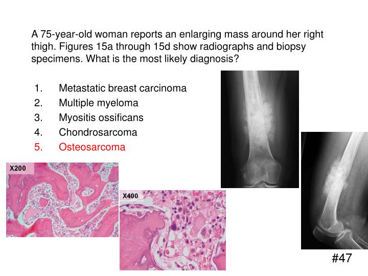 A 75-year-old woman reports an enlarging mass around her right thigh. Figures 15a through 15d show radiographs and biopsy specimens. What is the most likely diagnosis?