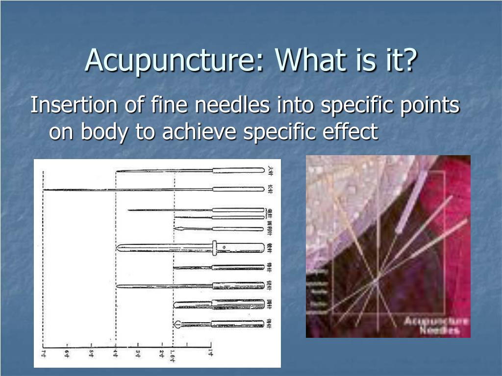 Acupuncture: What is it?