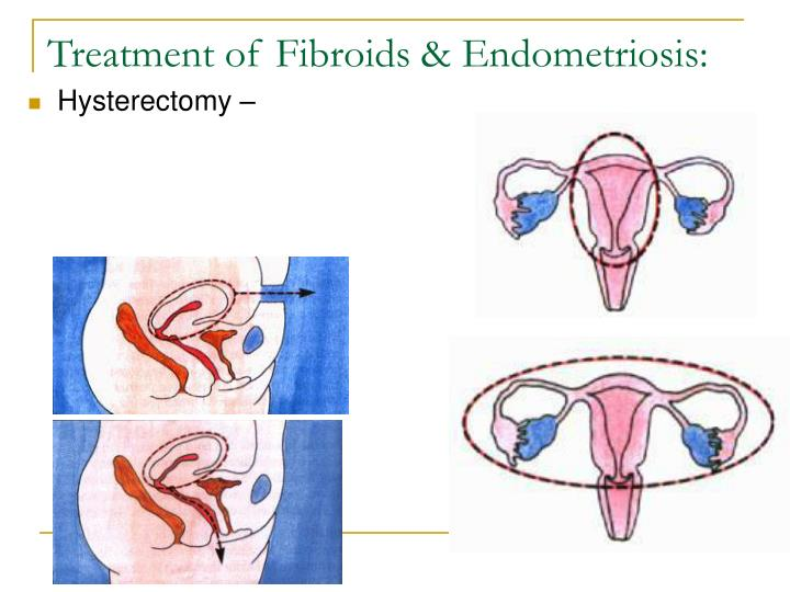 Treatment of Fibroids & Endometriosis: