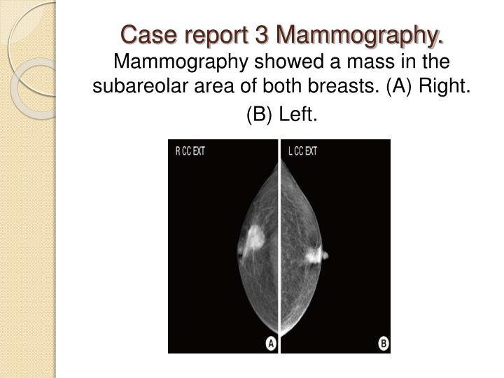 Case report 3 Mammography.