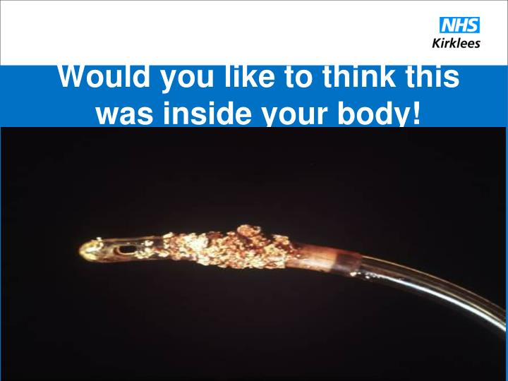 Would you like to think this was inside your body!