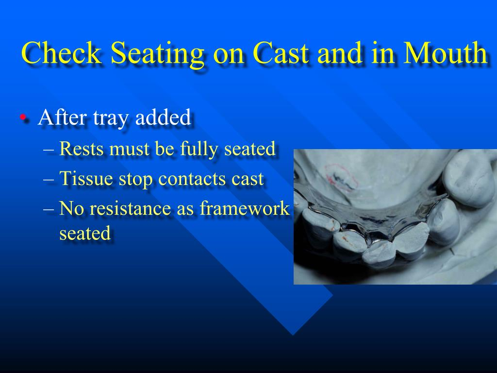 Check Seating on Cast and in Mouth