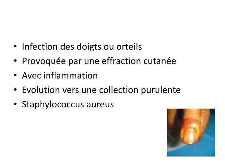 Infection des doigts ou orteils