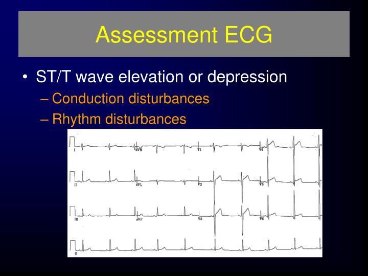 Assessment ECG