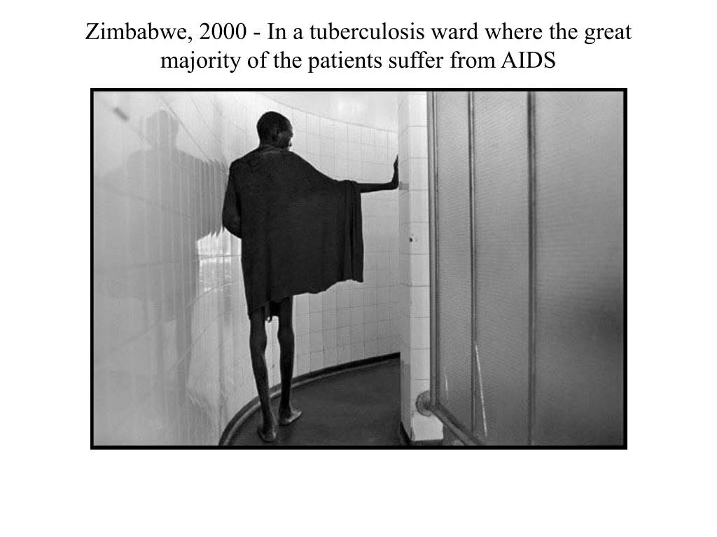 Zimbabwe, 2000 - In a tuberculosis ward where the great majority of the patients suffer from AIDS